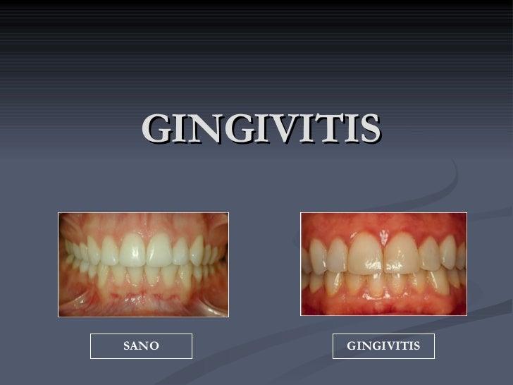 GINGIVITIS SANO GINGIVITIS