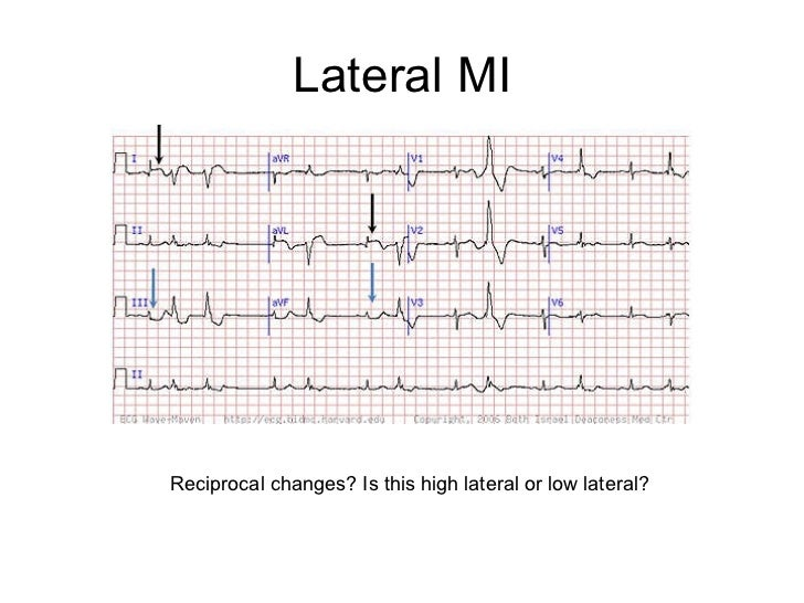 ekg leads mi pictures to pin on pinterest