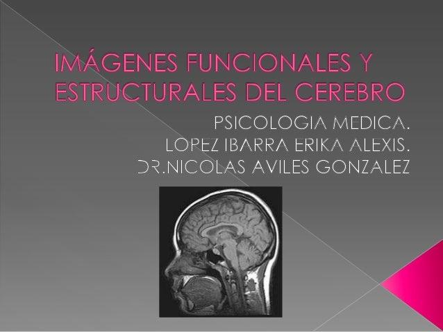 13. Imagenes Estructurales y Funcionales del Cerebro (30-Oct-2013)