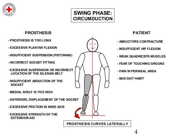 Swing To Gait Gait Analysis Gait Gait Physiopedia
