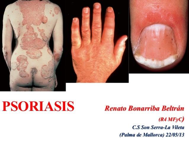 130525 psoriasis pdf