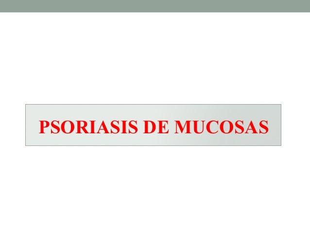 La psoriasis en la forma fácil de la foto