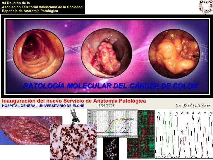 94 Reunión de la Asociación Territorial Valenciana de la Sociedad Española de Anatomía Patológica                 PATOLOGÍ...