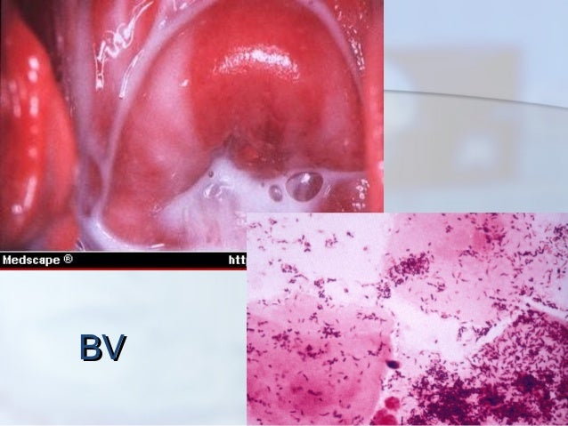chronic vaginal bacterial infection