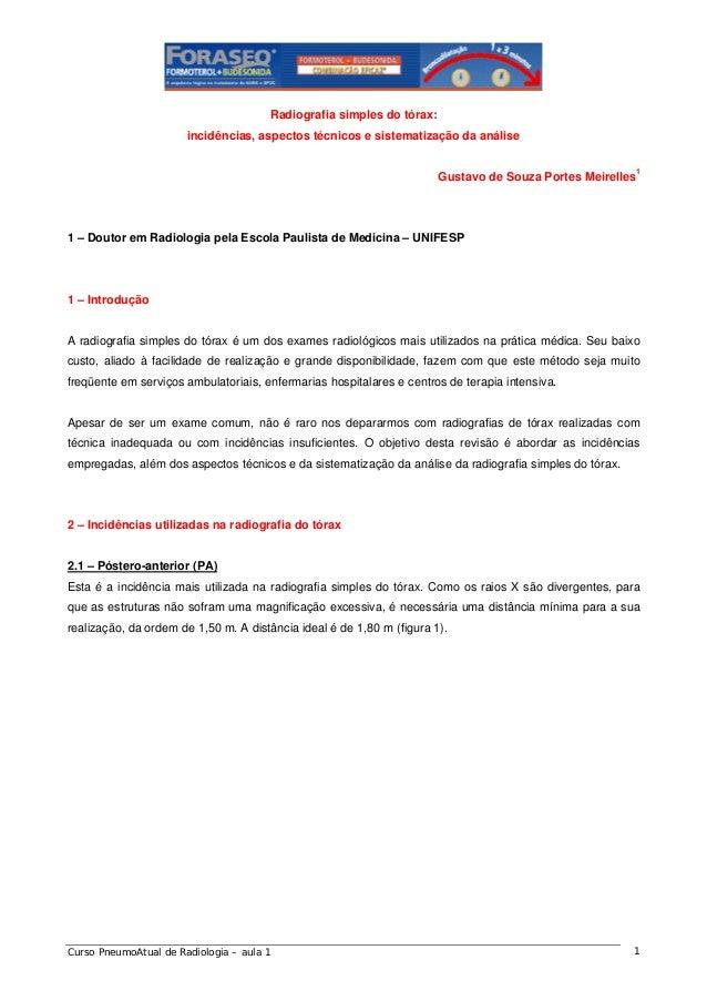 Radiografia simples do tórax: incidências, aspectos técnicos e sistematização da análise Gustavo de Souza Portes Meirelles...