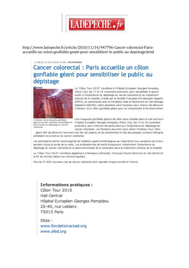 http://www.ladepeche.fr/article/2010/11/14/947796‐Cancer‐colorectal‐Paris‐ accueille‐un‐colon‐gonflable‐geant‐po...