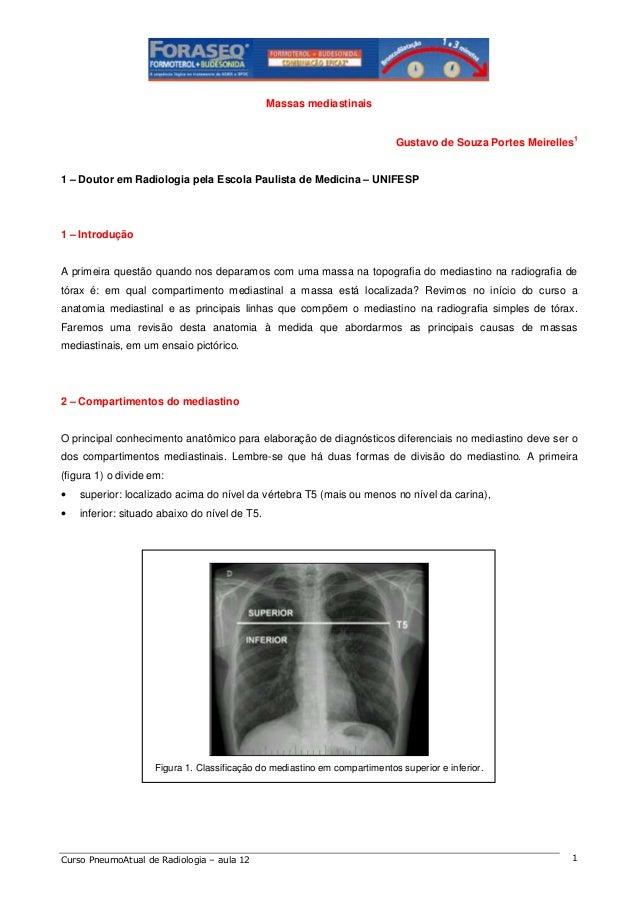 Massas mediastinais 1  Gustavo de Souza Portes Meirelles  1 – Doutor em Radiologia pela Escola Paulista de Medicina – UNIF...