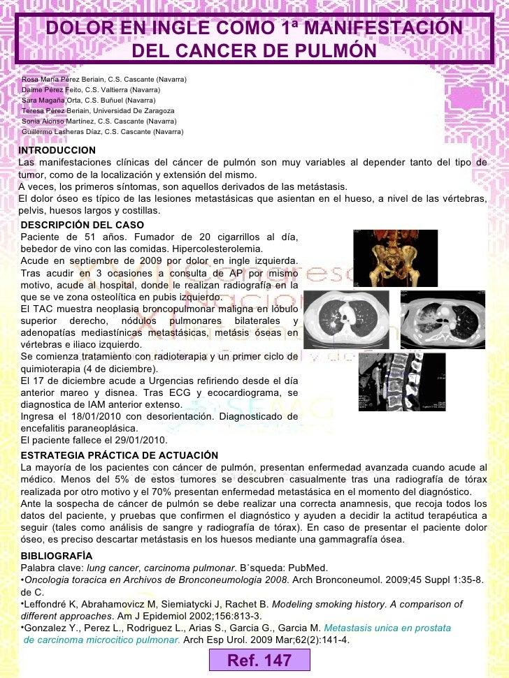 Presentación 147: DOLOR EN INGLE COMO 1ª MANIFESTACIÓN DEL CANCER DE PULMÓN