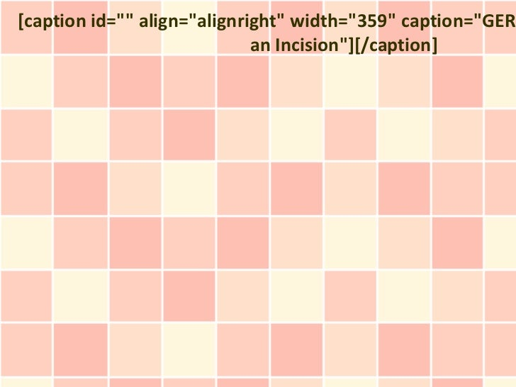 "[caption id="""" align=""alignright"" width=""359"" caption=""GERD                             an Incision""][/caption]"