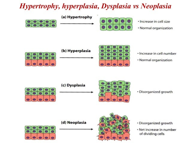Protein chips review, hypertrophy vs hyperplasia
