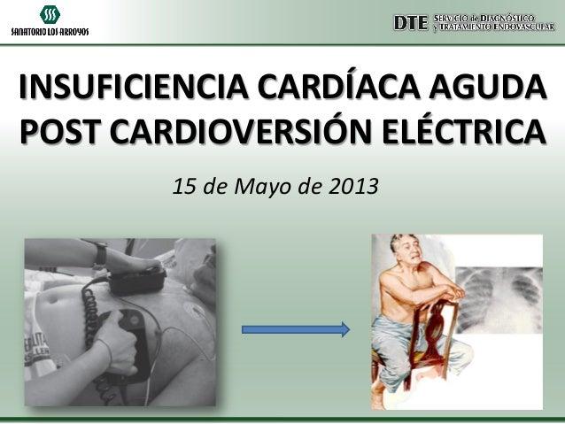 INSUFICIENCIA CARDÍACA AGUDA POST CARDIOVERSIÓN ELÉCTRICA 15 de Mayo de 2013