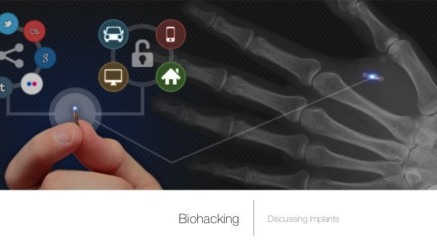 Biohacking Discussing Implants