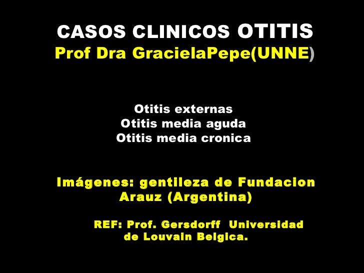 CASOS CLINICOS OTITISProf Dra GracielaPepe(UNNE)          Otitis externas       Otitis media aguda       Otitis media cron...