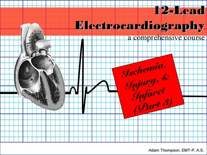 12-LeadElectrocardiography       a comprehensive course              ia,      Is chem      I nju ry, &        Inf arct    ...