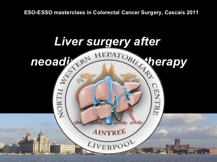 Liver surgery after  neoadjuvant chemotherapy Graeme Poston Consultant  Hepatobiliary  Surgeon Aintree  University Hospita...