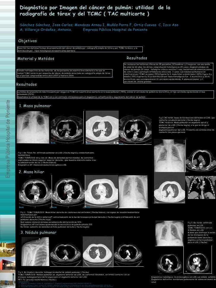 Diagnóstico por Imagen del cáncer de pulmón: utilidad  de la radiografía de tórax y del TCMC ( TAC multicorte ) Sánchez Sá...