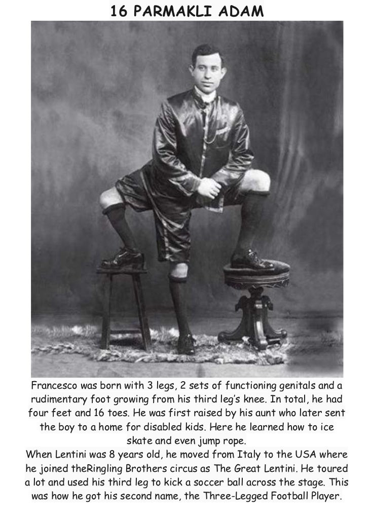 16 PARMAKLI ADAM  Francesco was born with 3 legs, 2 sets of functioning genitals and a  rudimentary foot growing from his ...