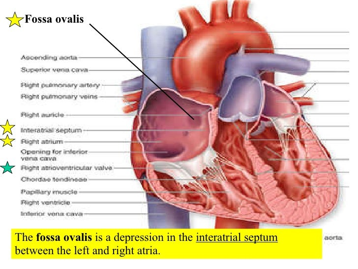 Causes Of Ventricular Septal Defect In Adults Setiopolisflying