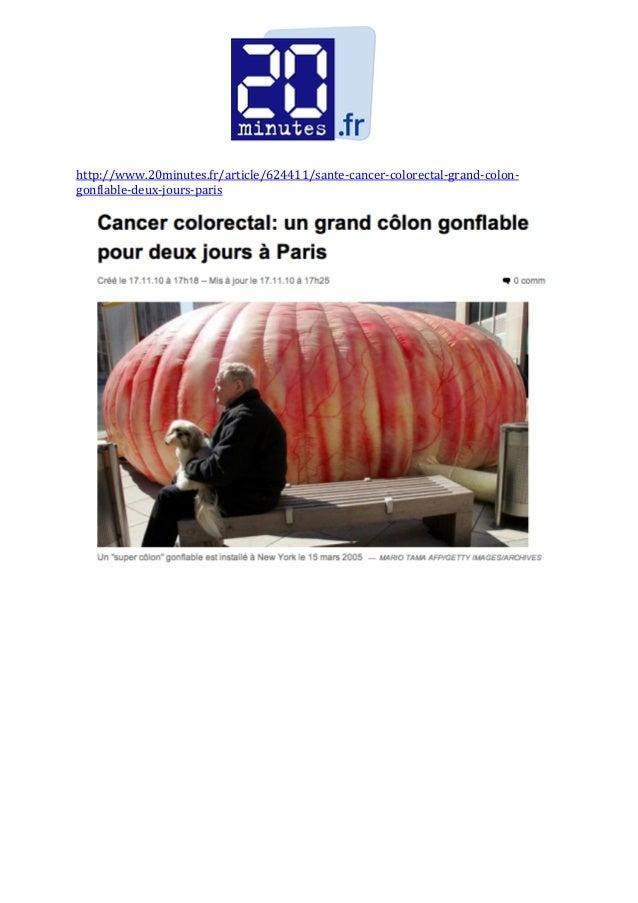 http://www.20minutes.fr/article/624411/sante‐cancer‐colorectal‐grand‐colon‐ gonflable‐deux‐jours‐paris