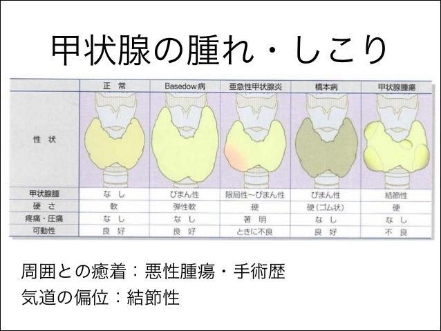 甲状腺結節の診断