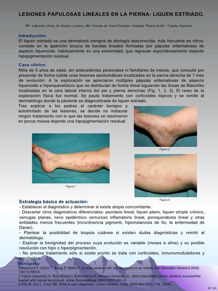 Presentaci n 183 lesiones papulosas lineales en la pierna - M a interiorismo cb granada ...