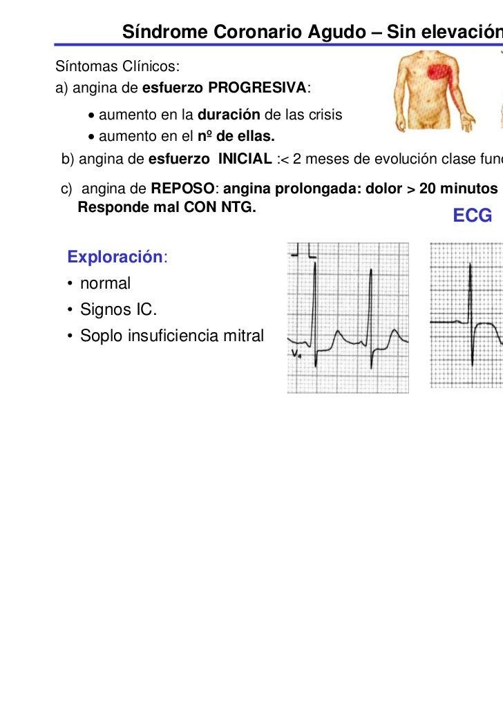 Síndrome Coronario Agudo – Sin elevación del STSíntomas Clínicos:a) angina de esfuerzo PROGRESIVA:    • aumento en la dura...