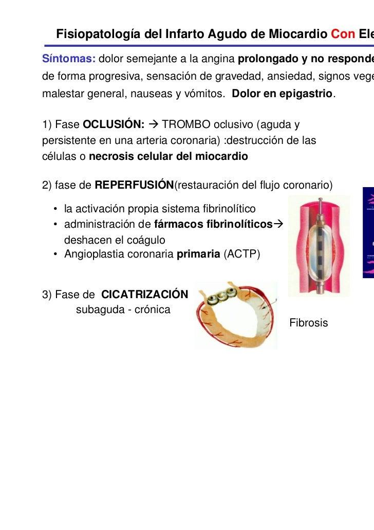 Fisiopatologia Del Dolor Agudo Fisiopatolog a Del Infarto Agudo de Miocardio Con Elevaci n Seg
