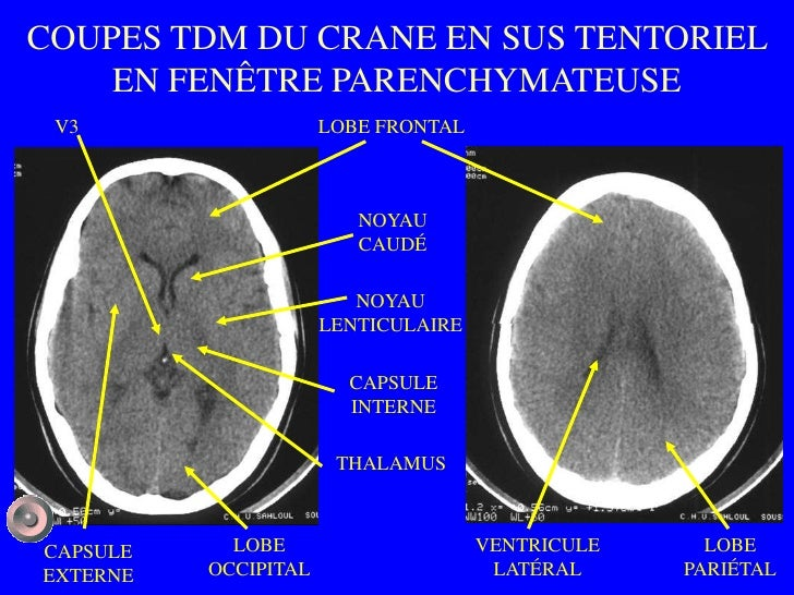 1 anatomie et semiologie rdiologique version 1 for Fenetre mandibulaire