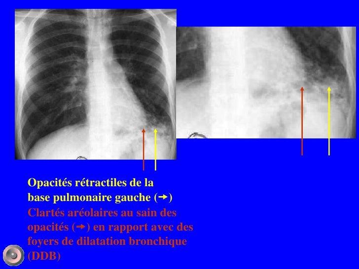 Opacités rétractiles de labase pulmonaire gauche ()Clartés aréolaires au sain desopacités () en rapport avec desfoyers d...