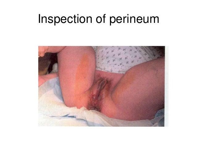 Enema in vagina