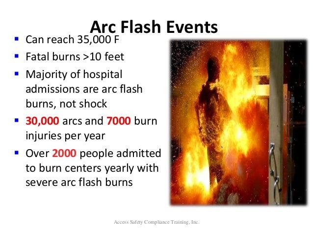 how to help flash burn