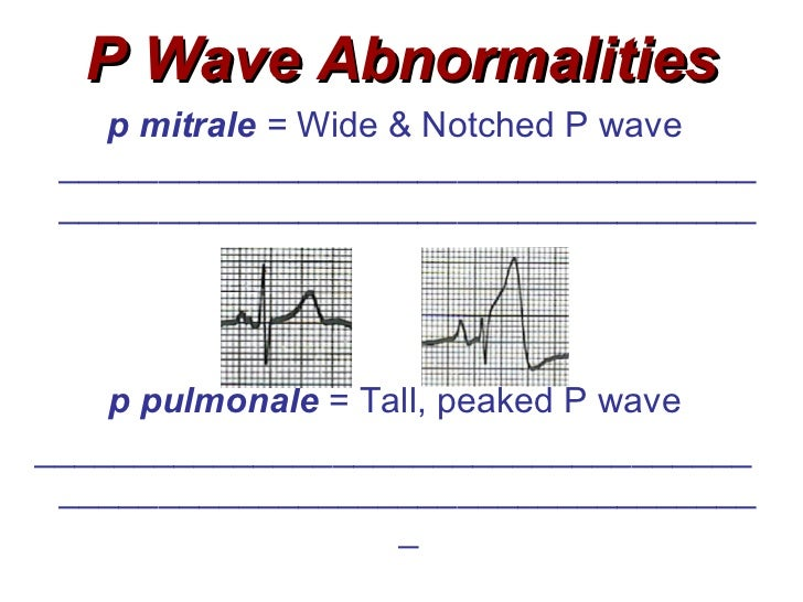 Related Keywords & Suggestions for notched p wave