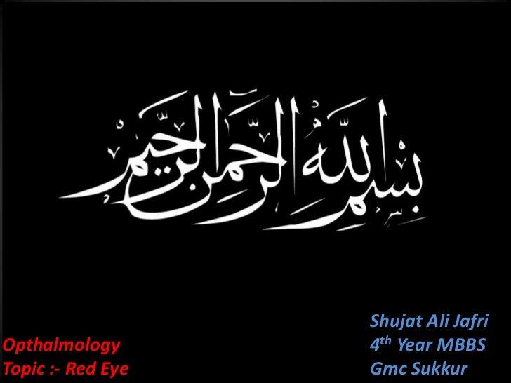 Shujat Ali JafriOpthalmology               4th Year MBBSTopic :- Red Eye   Jafri                           Gmc Sukkur