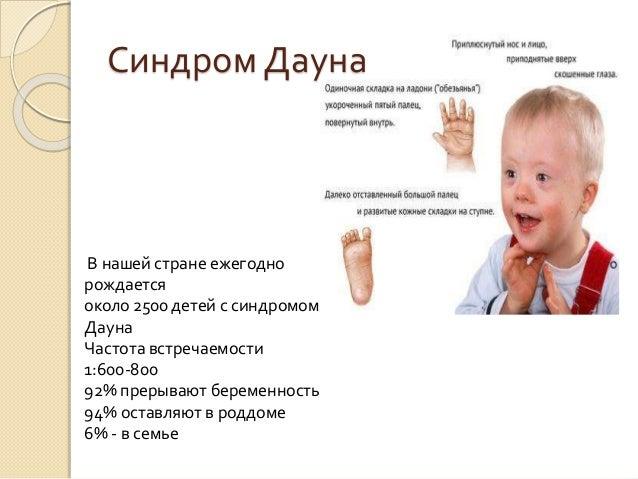 Прерывание беременности при синдром дауна