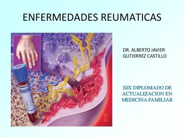 ENFERMEDADES REUMATICAS DR. ALBERTO JAVIER GUTIERREZ CASTILLO XIX DIPLOMADO DE ACTUALIZACION EN MEDICINA FAMILIAR