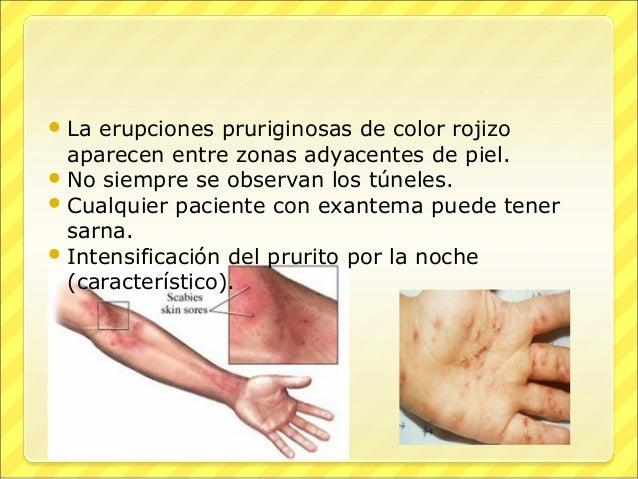 Baño En Tina Al Paciente:parasitosis cutaneas