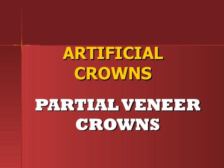 2. artificial crowns partial veneer crowns -midterm2