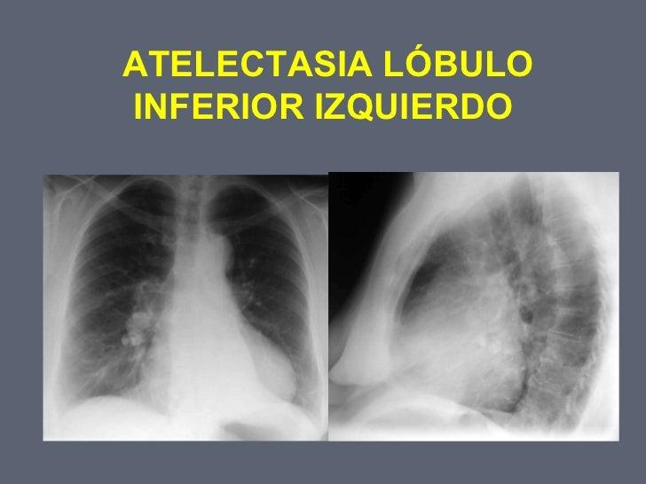 2 atelectasia pulmonar for Interior izquierdo