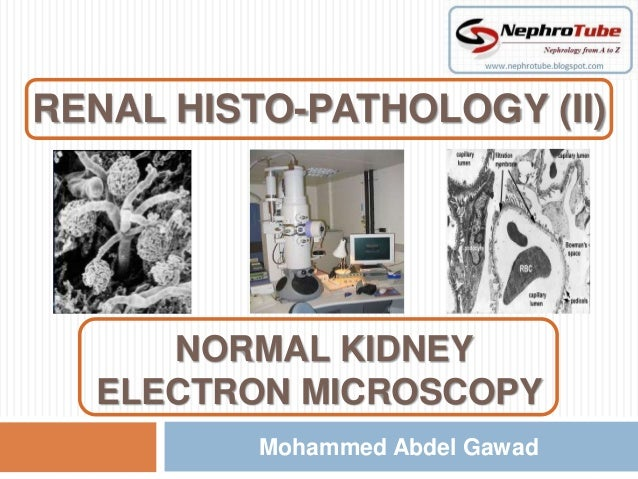 RENAL HISTO-PATHOLOGY (II)             m     NORMAL KIDNEY  ELECTRON MICROSCOPY          Mohammed Abdel Gawad