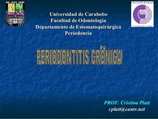 Universidad de Carabobo      Facultad de OdontologíaDepartamento de Estomatoquirúrgica            Periodoncia             ...