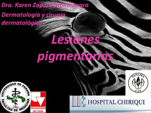 Lesiones pigmentarias Dra. Karen Zapata Montenegro Dermatología y cirugía dermatológica