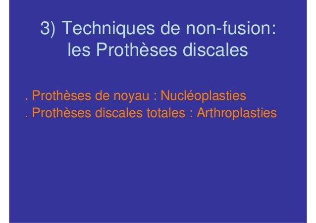 3) Techniques de non-fusion:      les Prothèses discales. Prothèses de noyau : Nucléoplasties. Prothèses discales totales ...