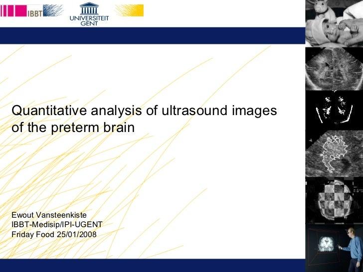 Quantitative analysis of ultrasound images  of the preterm brain Ewout Vansteenkiste IBBT-Medisip/IPI-UGENT Friday Food 25...