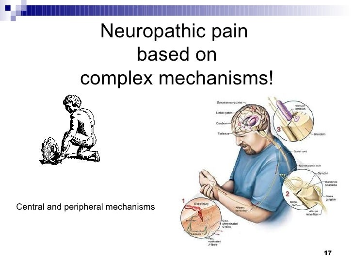 Neuropathic Pain Mechanism Neuropathic Pain Based on