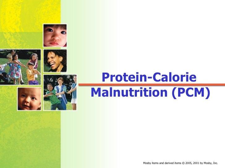 Protein-Calorie  Malnutrition (PCM)