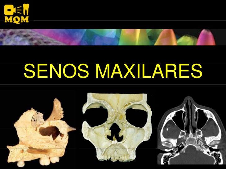 Senos Maxilares