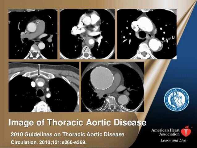 Image of Thoracic Aortic Disease