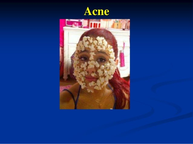 Professional and Home Care for Acne