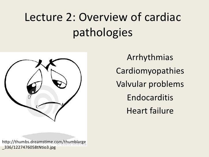 Lecture 2: Overview of cardiac                   pathologies                                             Arrhythmias      ...