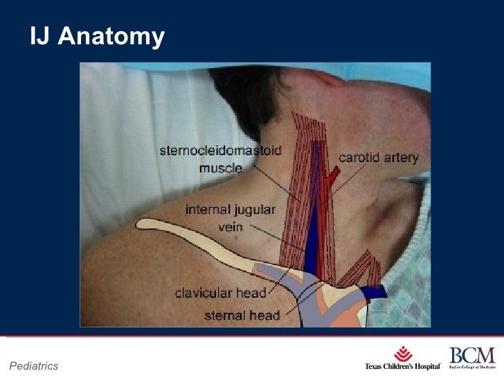 Similiar Internal Jugular Central Line Anatomy Keywords